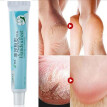 20g Cracked Heel Balm Cream Skin Care Natural Moist Product for Rough Dry and Cracked Chapped Hand/Feet