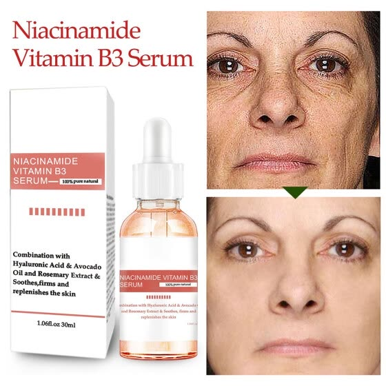 Niacinamide Vitamin B3 Facial Serum Lifting Firming Regenerative Essence Shrink Pore Anti-Aging Moisturizing Cream