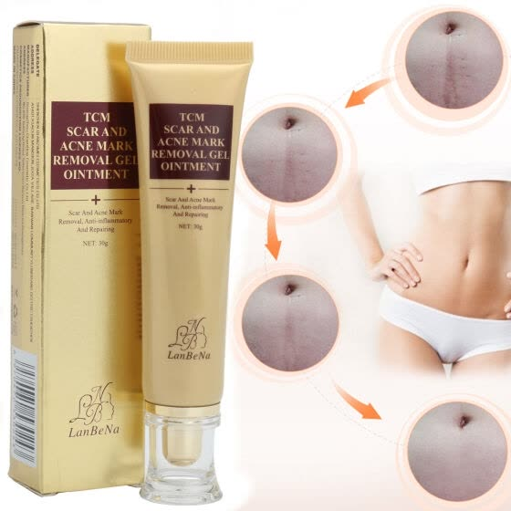 Удаление акне Скар Stretch Marks Cream Fat Scar Striae Gravidarum Treatment